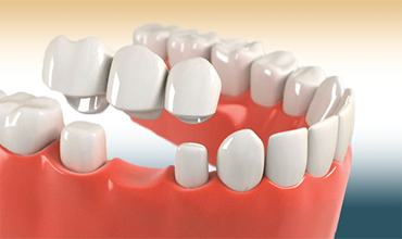 Dental crowns and bridges are dental treatments that will restore damaged teeth or replace multiple missing ones.